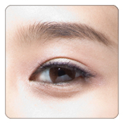 Eye bag surgery, Lower Blepharoplasty in hong kong
