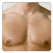 Gynaecomastia Correction